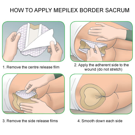Mepilex Border Sacrum 282000 Direct Medical